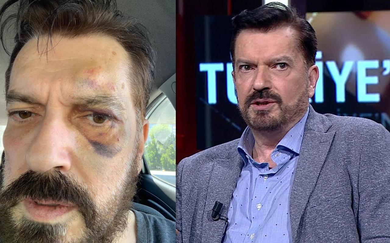 SONAR anketin sahibi Hakan Bayrakçı'yı kim dövdü? İma ettiği isim