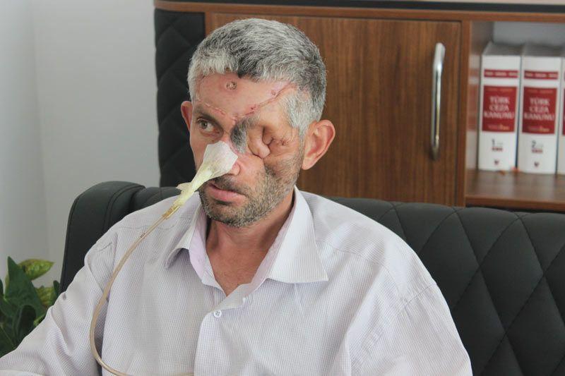 Ağrıyan dişini çektirdi yüzünün yarısı çöktü bir gözü kayboldu