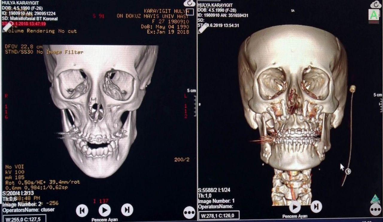Samsun'da çene ameliyatı olan Hülya Karayiğit hem güzelliğine hem de sağlığına kavuştu