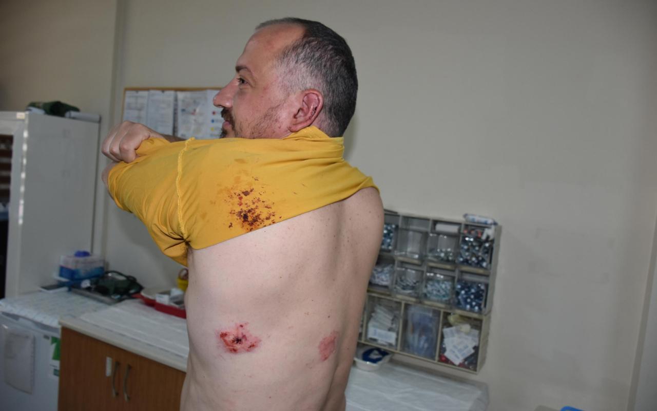 Muğla'da ünlü gezgin Fatih Koparan'a sopalı saldırı