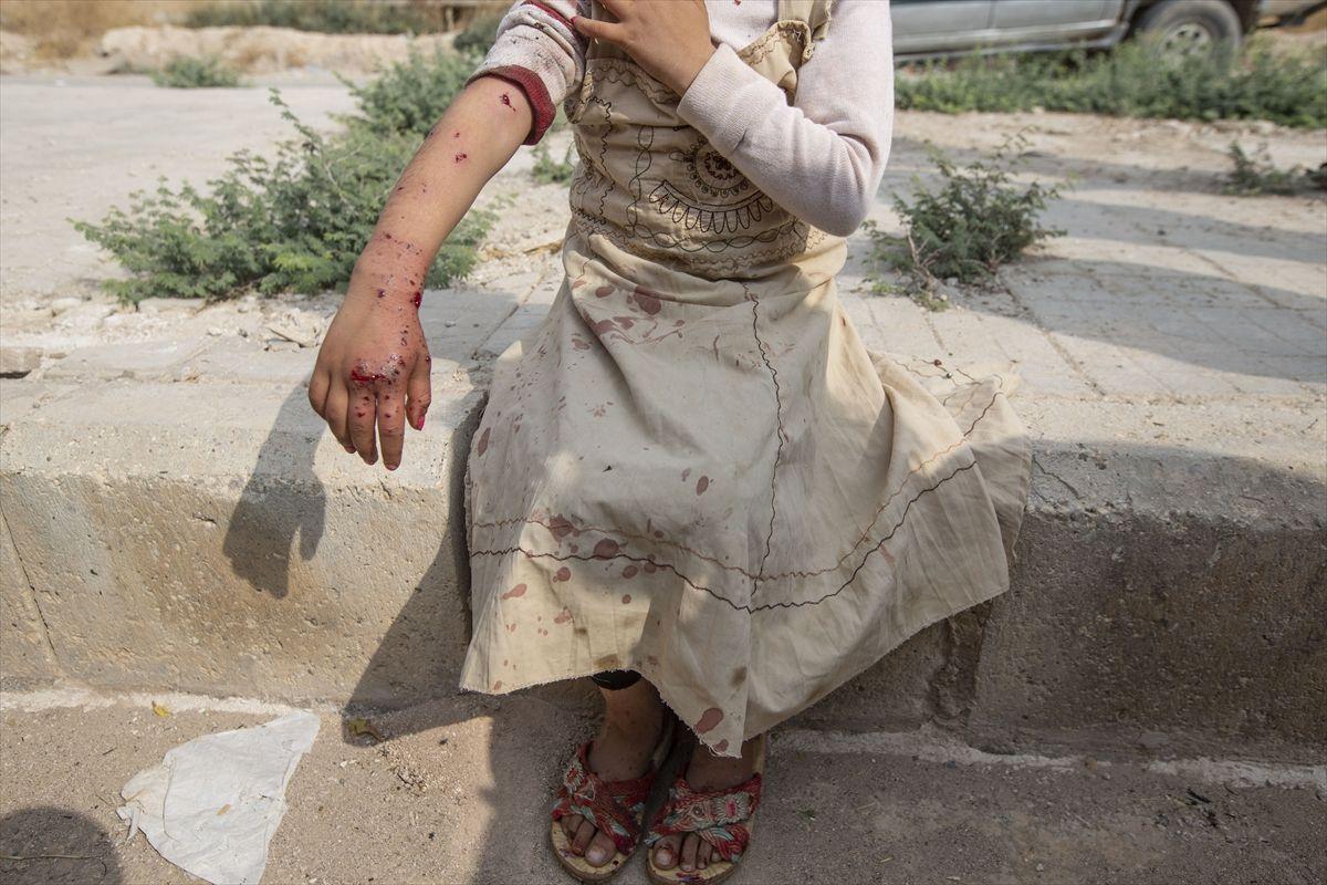 Tel Abyad'da YPG/PKK'nın eve döşediği mayın patladı: Siviller yaralandı