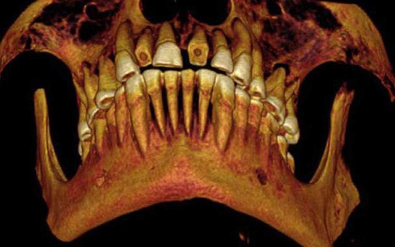 Eski Mısır'da kullanılan 1600 yıllık en eski diş macunu tarifini deneyin!