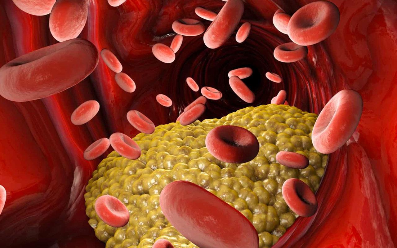 Kötü kolesterol nedir? Kolesterol değerleri yüksek-düşük ve normal kaç olur