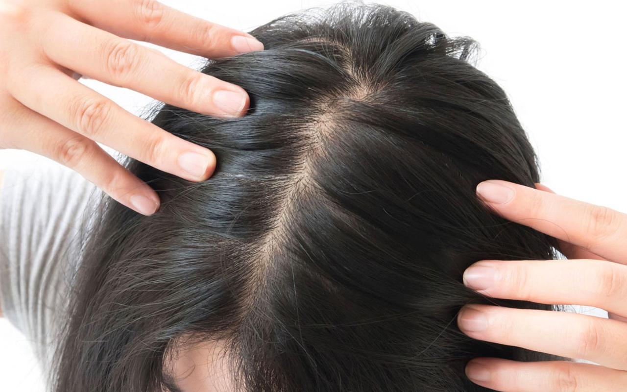 Saçım dökülüyor ne yapmalıyım diyenler için sonbahar önerileri!