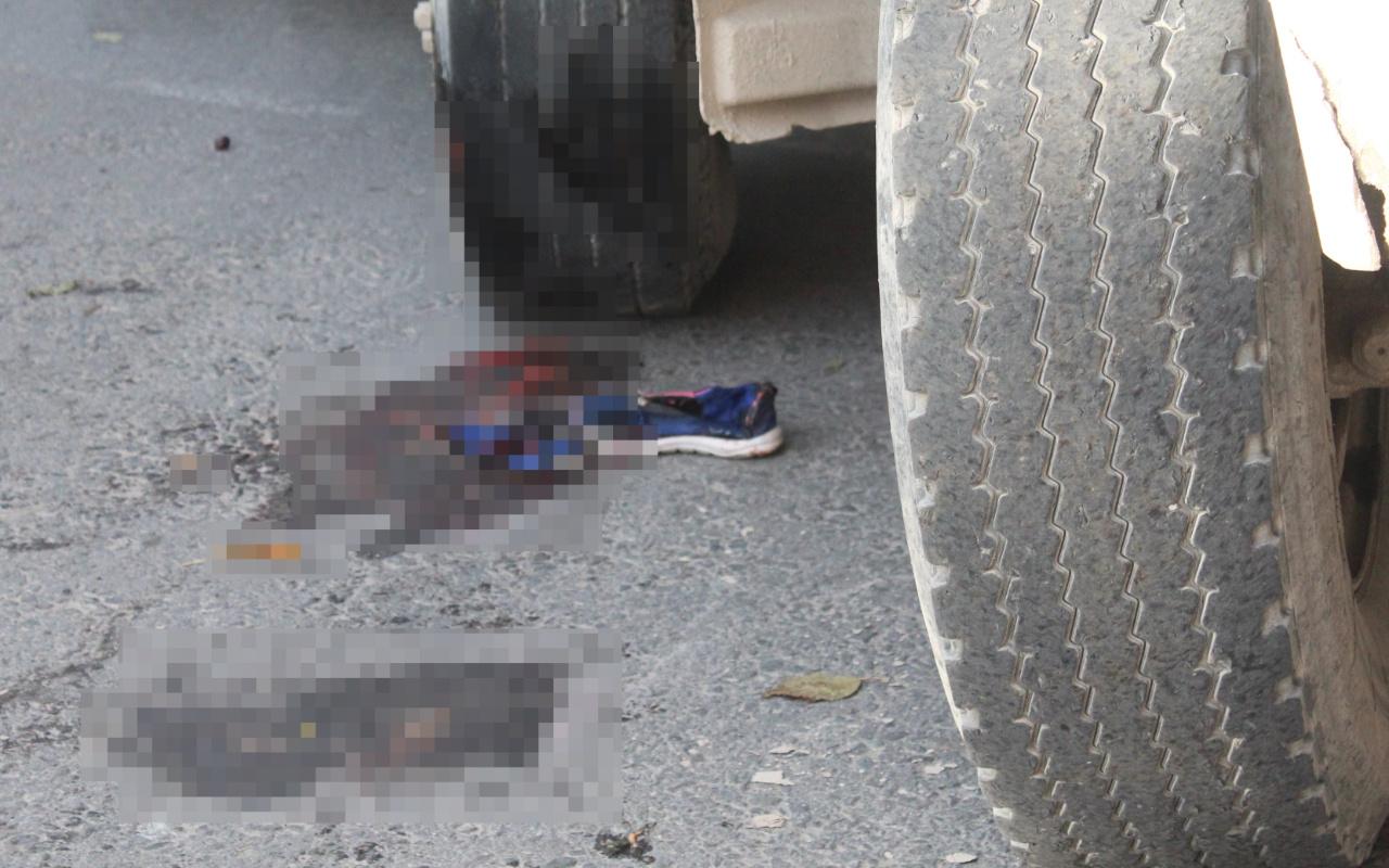 Muğla'da kamyonun altında kalan minik Aylin'in sağ ayağı kesildi