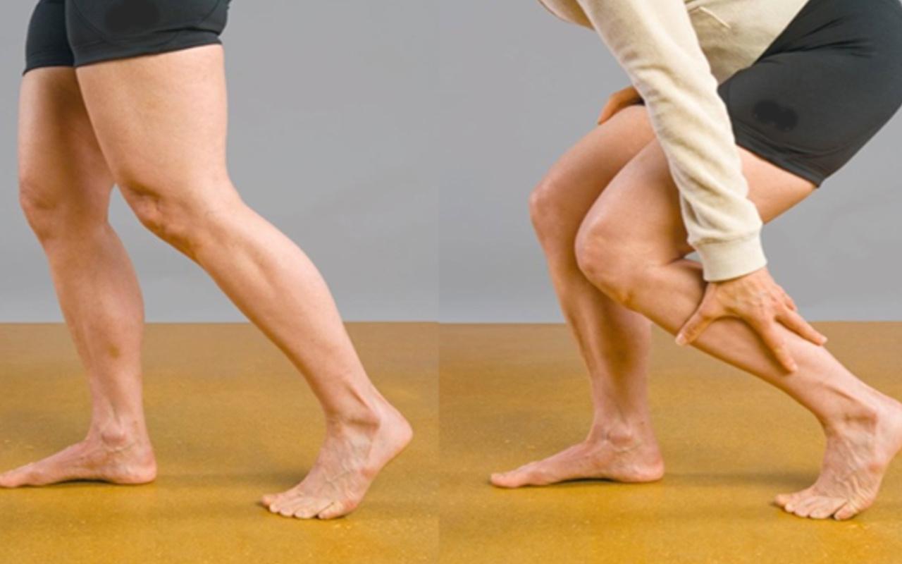 Bacaklarınız kalınlaşıyorsa dikkat sakın kilo sanmayın!