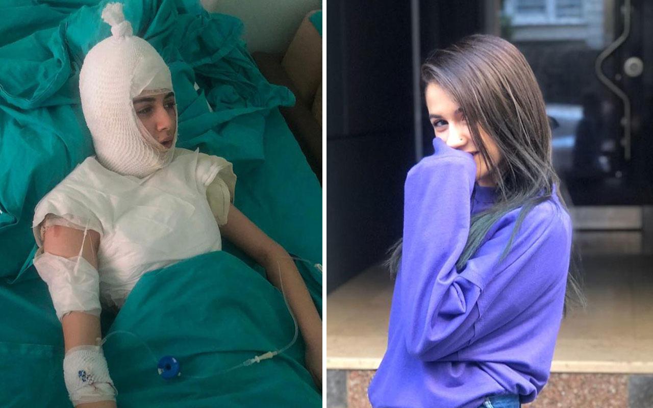 Ümraniye'de üvey anne 14 yaşındaki kızın başından aşağı kaynar su döktü