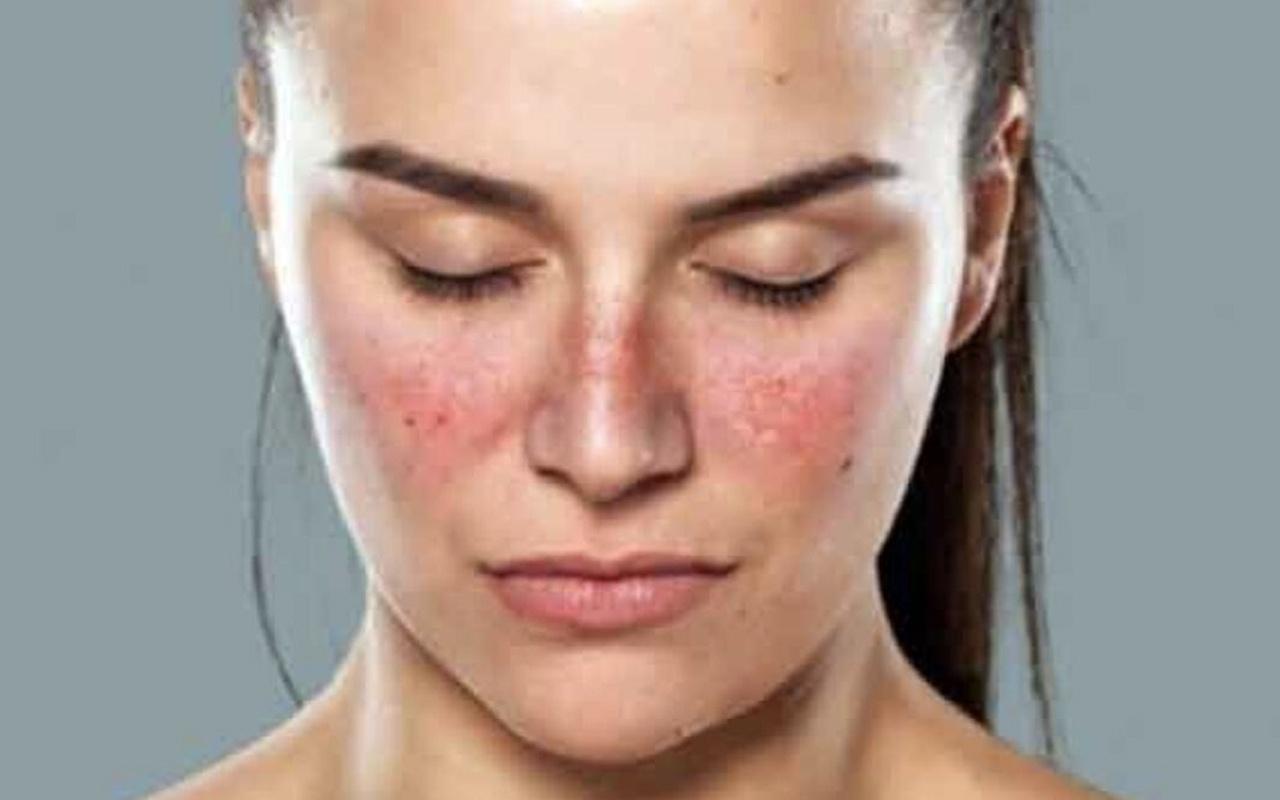 Lupus nedir Lupus hastalığı belirtileri neler tedavisi mümkün mü?