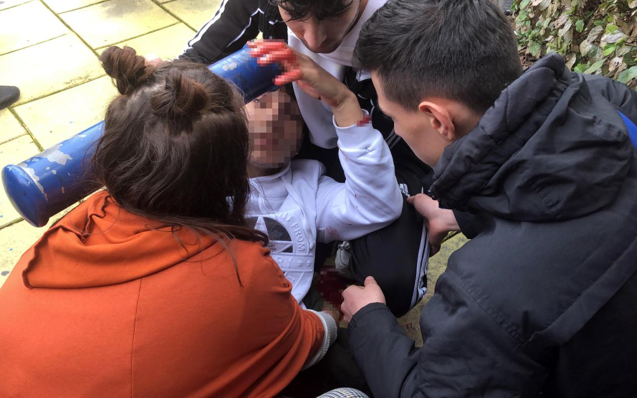 İstanbul Avcılar'da öğrencilerin kavgasında kan aktı
