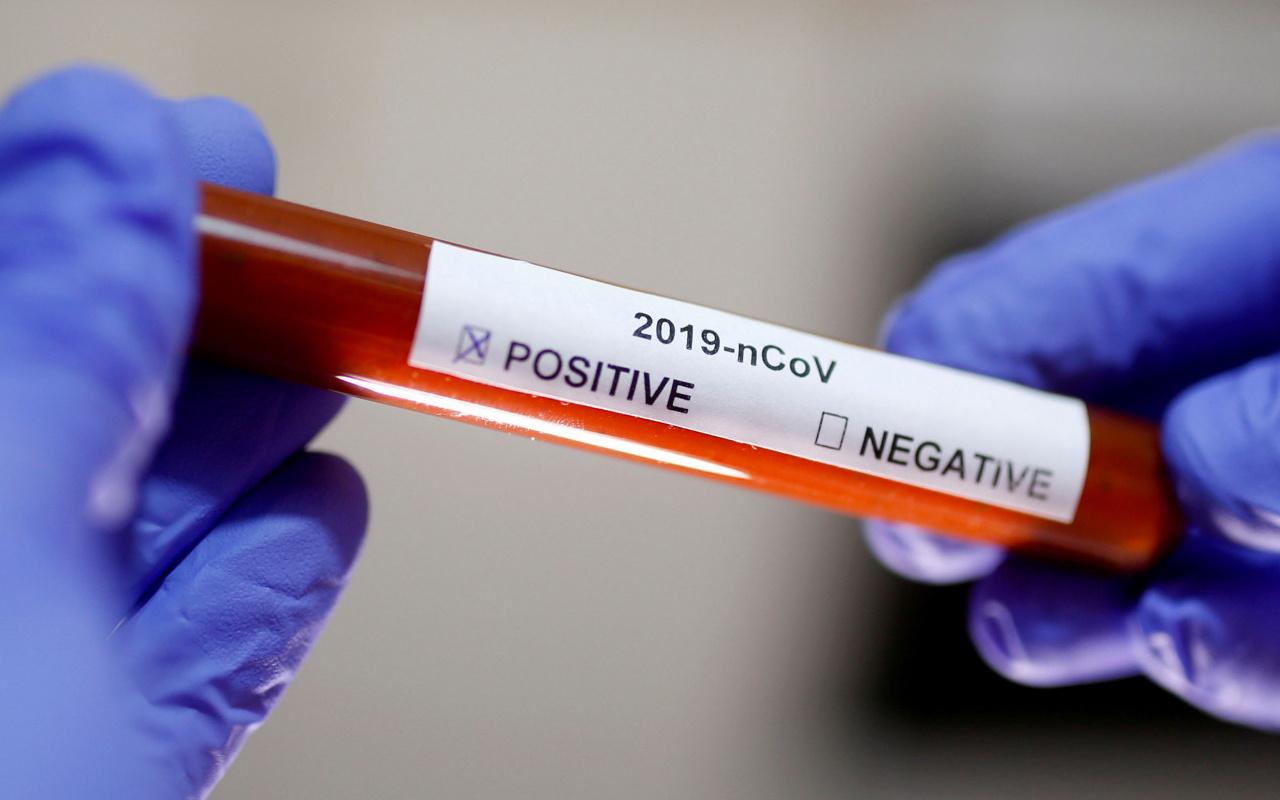Sanayi ve Teknoloji Bakanlığı'ndan fabrikalara koronavirüs uyarısı