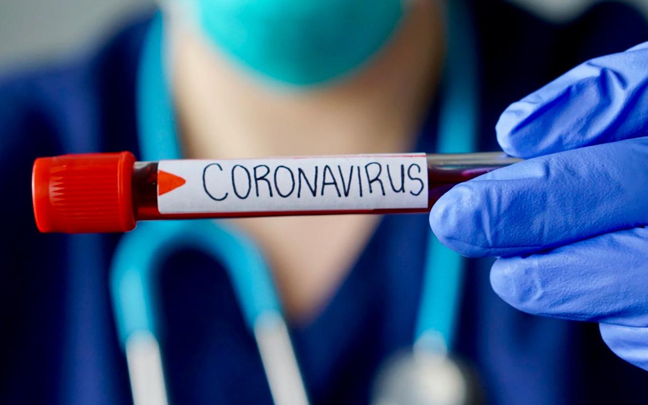 Ünlü medya patronunda koronavirüs şüphesi! Yoğun bakıma alındı