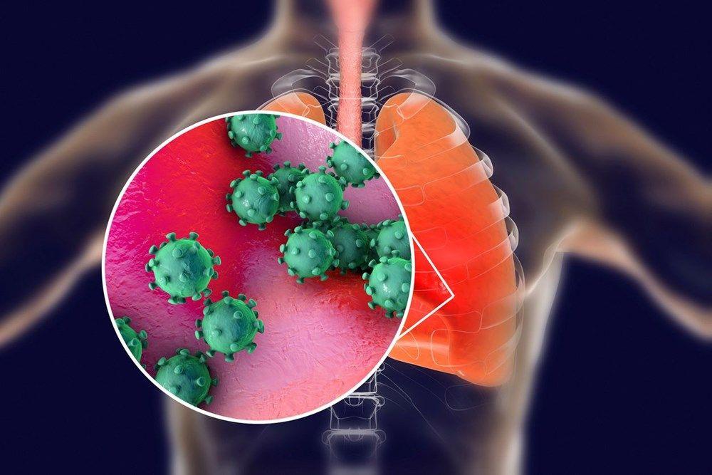 Koronavirüs salgınında can kaybı 11 bini aştı Hollanda'da 3 Türk öldü