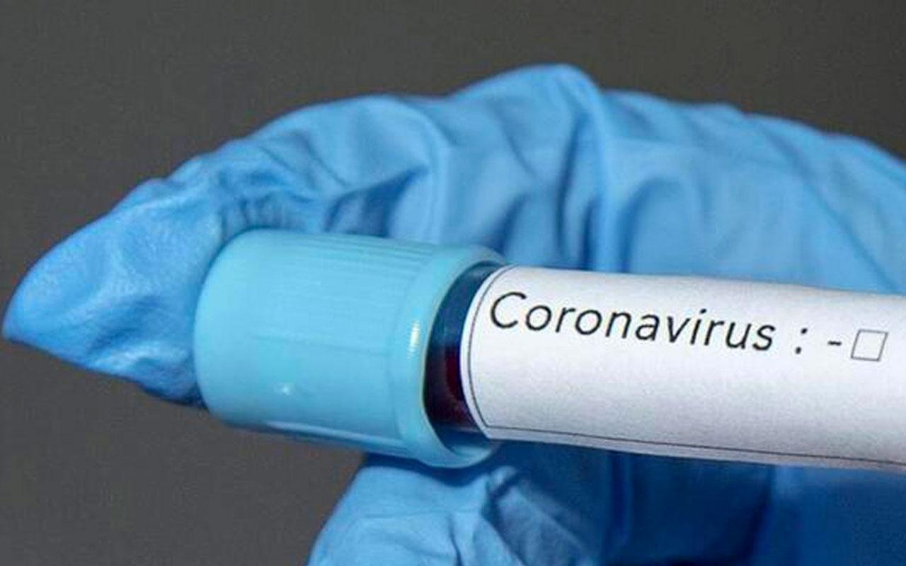 İsrail Sağlık Bakanında koronavirüs tespit edildi