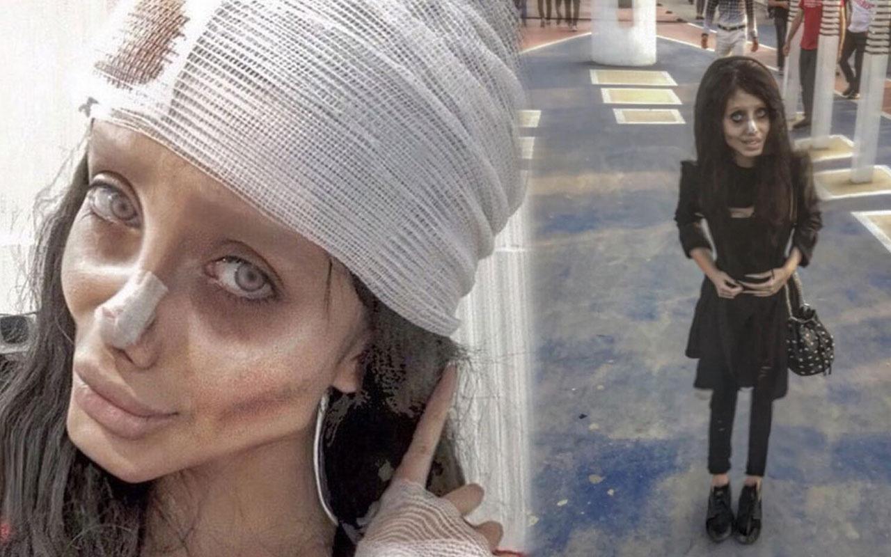 O da koronavirüse yakalandı Angelina Jolie'ye benzemek istiyordu!