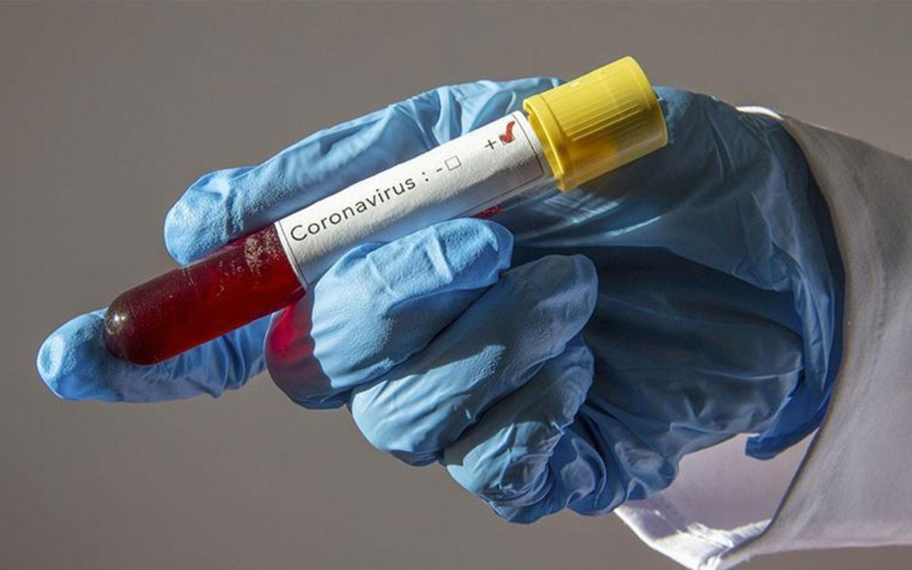Cerrahpaşa Tıp Fakültesi Dekanı Prof. SaitGönen'den kritik koronavirüs açılaması