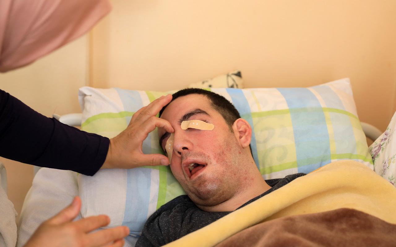 Antalya'da 6 yıldır evladının gözlerini yara bandıyla kapatıyor