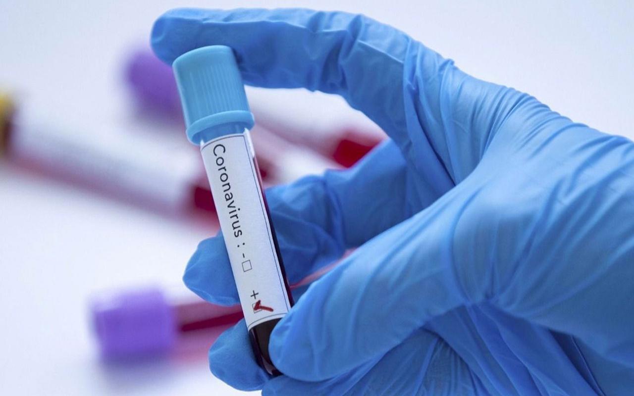 Koronavirüs tedbirlerini dinlemeyip mevlide katılan 37 kişi koronavirüse yakalandı