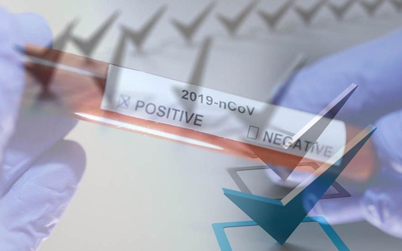 Dikkat çeken koronavirüs anketi! Normalleşme sürecinde yüzde 55'lik kesim o yerlere gitmeyecek