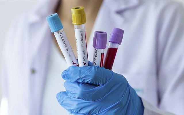 Koronavirüs hastalığı hafif atlatanlarda bile antikor üretimi sağlıyor