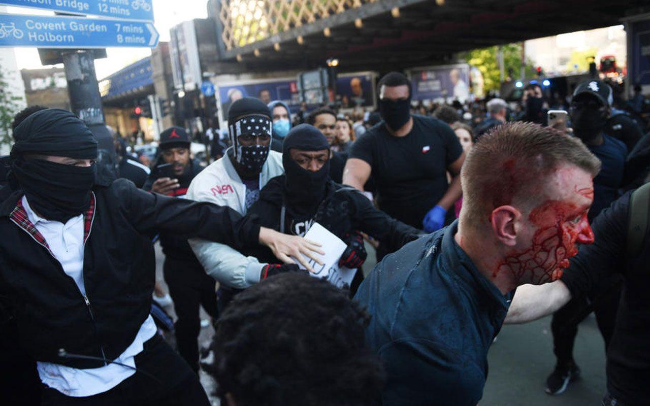 İngiltere siyahi protestocuyu konuşuyor! Darp edilen aşırı sağcıyı kurtardı