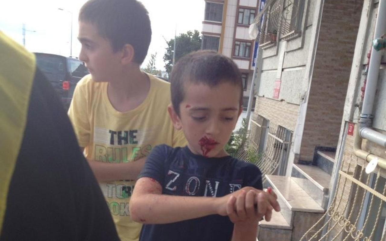 Sultangazi'de 10 yaşındaki çocuğa köpek saldırdı
