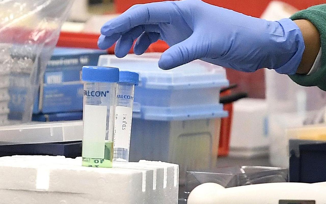 Rusya ekim ayında toplu aşı uygulamasına başlıyor