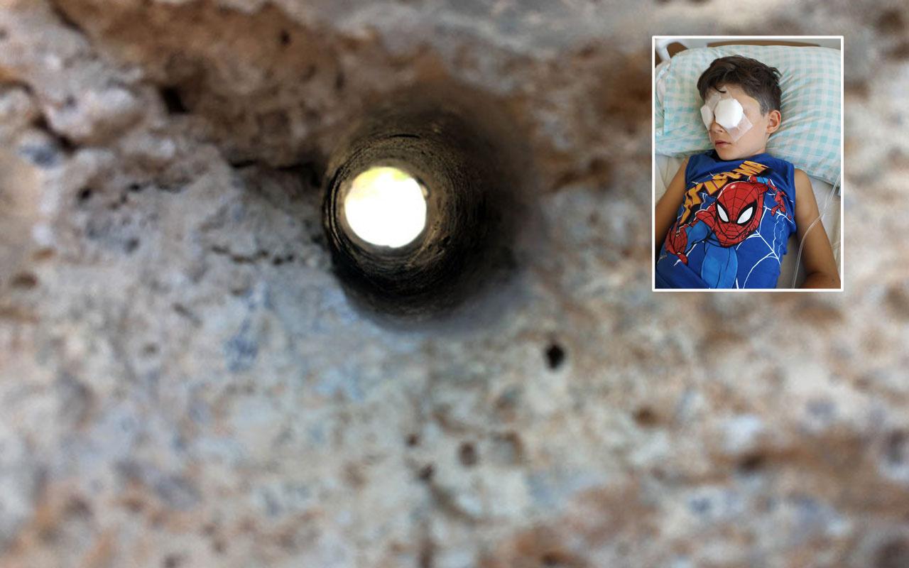 Konya'da merak edip duvar deliğinden bakan Arda gözlerinden oldu