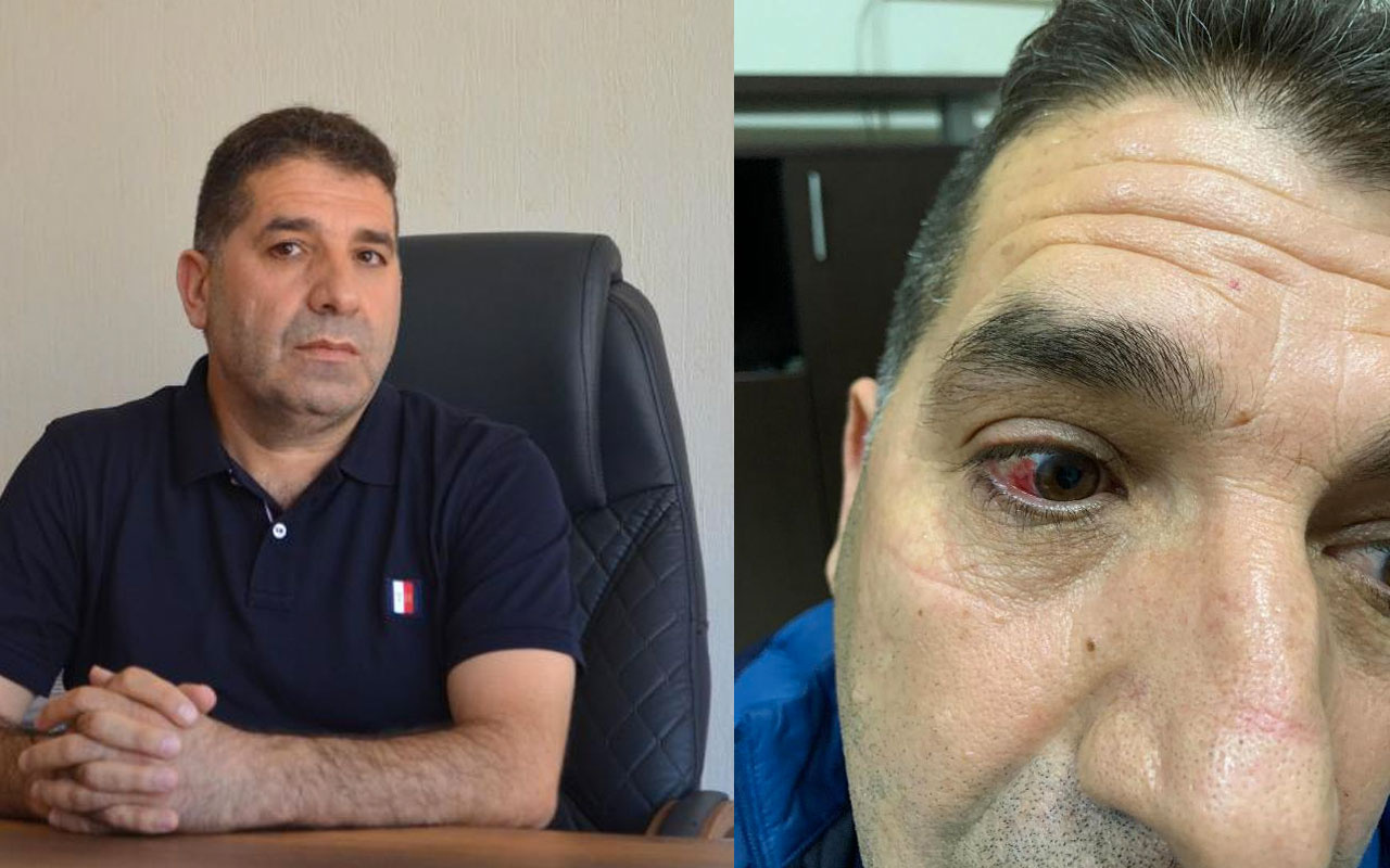 İzmir'de darp edilen Ak Partili Meclis Üyesi'nden olay iddia! Belediye başkanı yaptırdı