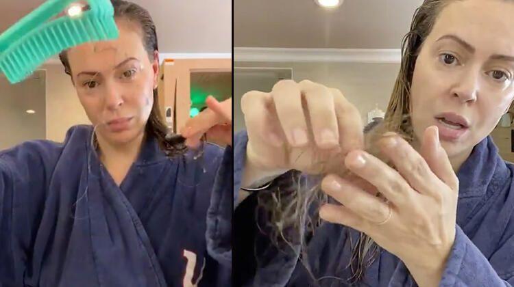 Koronaya yakalanan ünlü oyuncudan şok video! 'Covid-19 yüzünden saçlarım dökülüyor...'