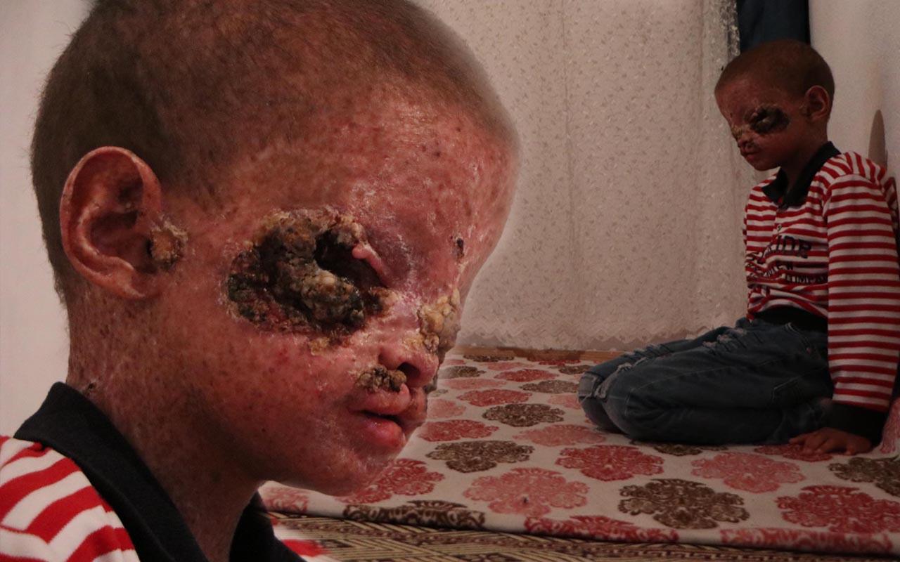 Erzurum'da cilt kanseri 8 yaşındaki Salih yardım bekliyor