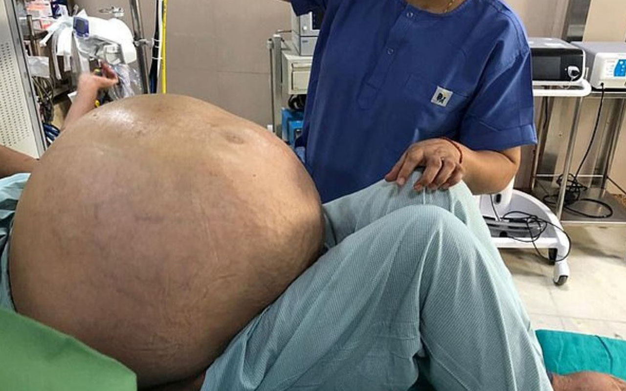 Hindistan'da çıkarması saatler sürdü! Yumurtalık tümörü hastanın yarı ağırlığında