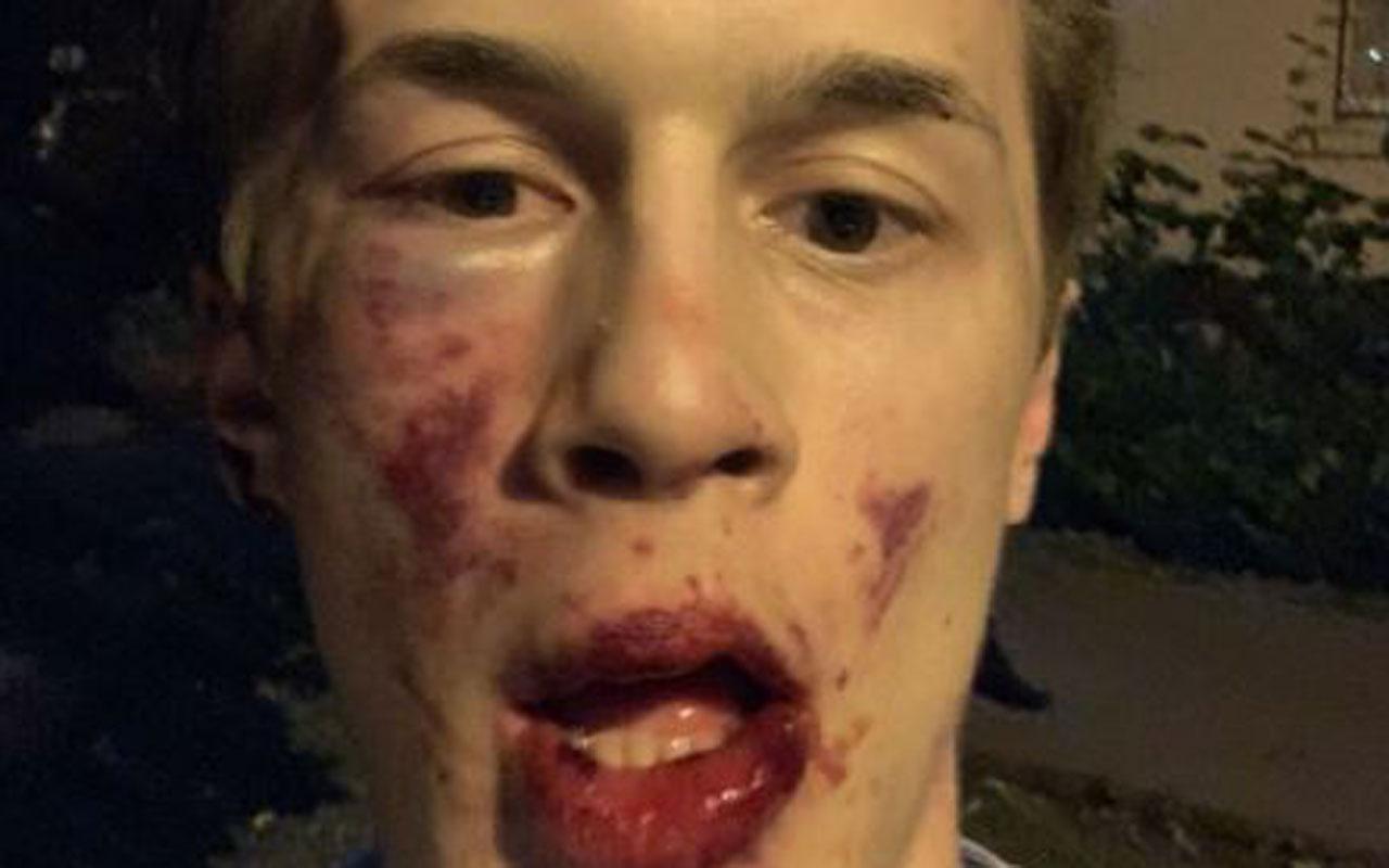 Rusya'da muhalif gazeteciye evinin önünde saldırıya uğradı