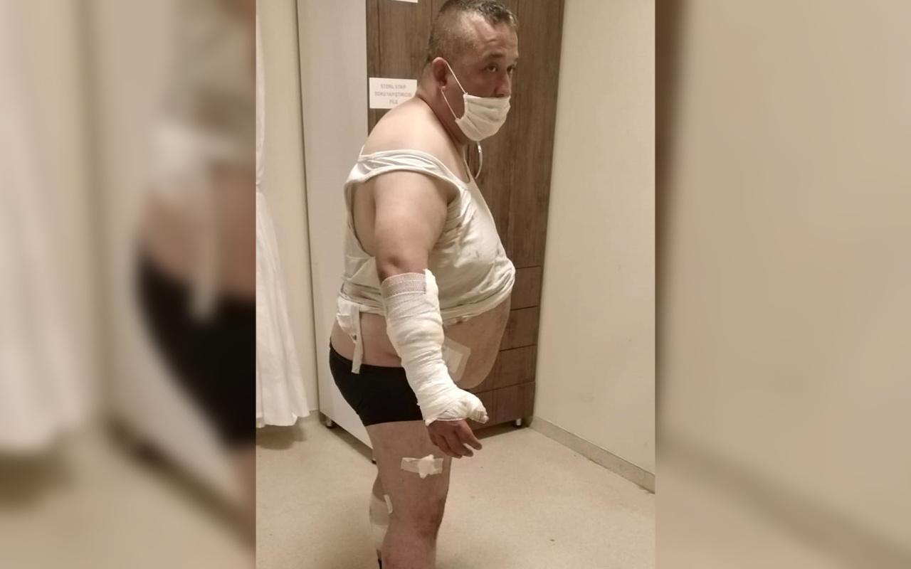 Oteldeki pitbull'ların saldırısına uğradı! 40 dikiş atılıp, 100 iğne yapıldı