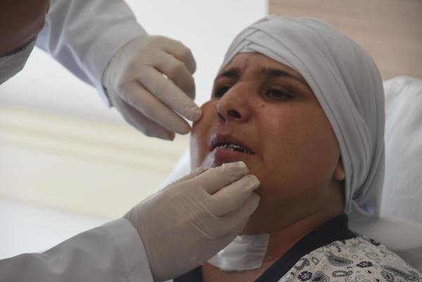 Trafik kazasında yüzü ikiye ayrıldı! 10 saatlik ameliyatla tekrar brleştirildi