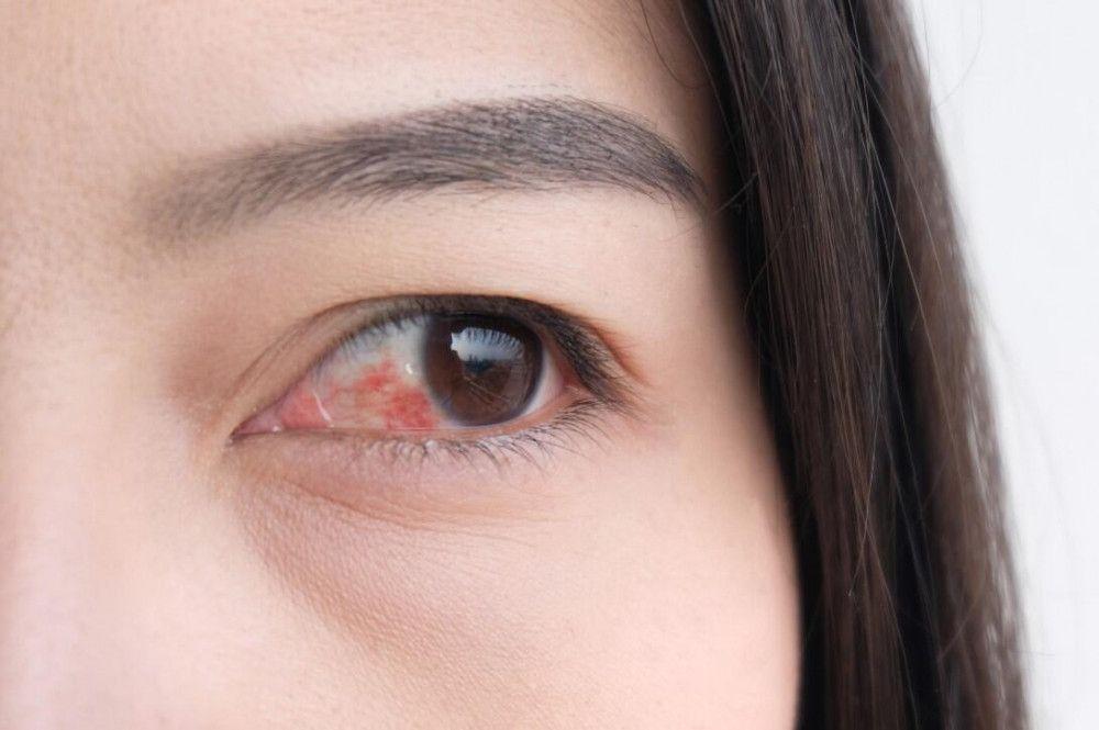 Uzman Opr. Dr. Tuncay Sezgin uyardı! Koronavirüste çarpıcı ''kırmızı göz'' belirtisi!