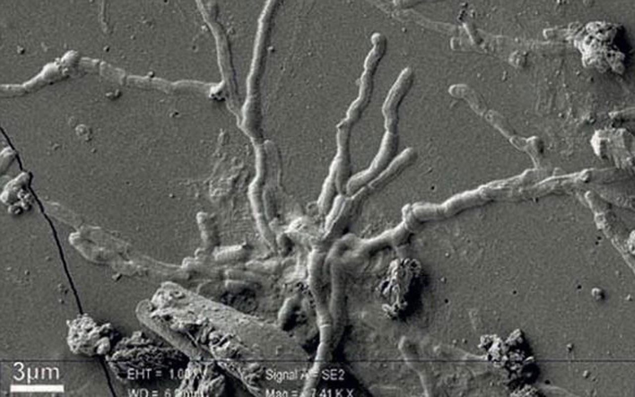 İtalya'da 2 bin yıl önceye ait kafatasından sağlam beyin hücresi keşfedildi