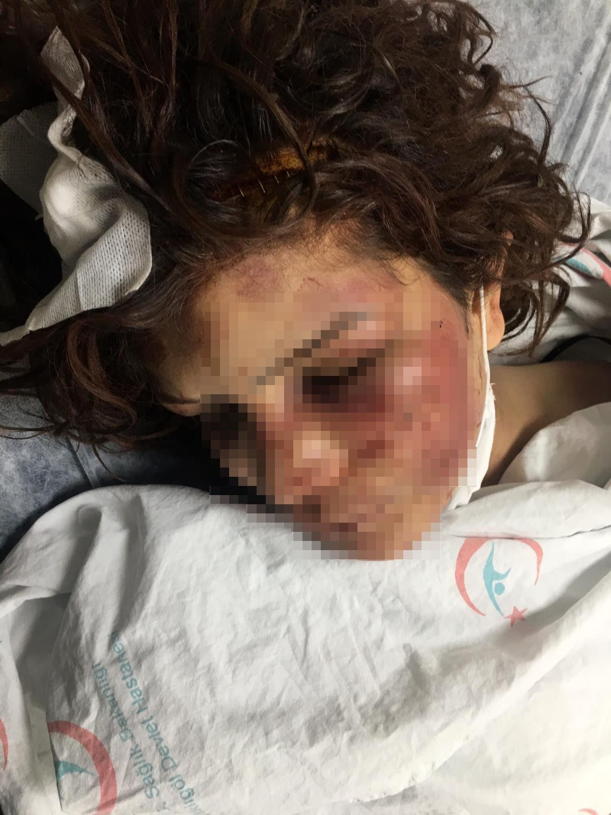 Şanlıurfa'da kan donduran olay! Eşini eve kilitleyip işkence yaptı kerpetenle tırnaklarını söktü