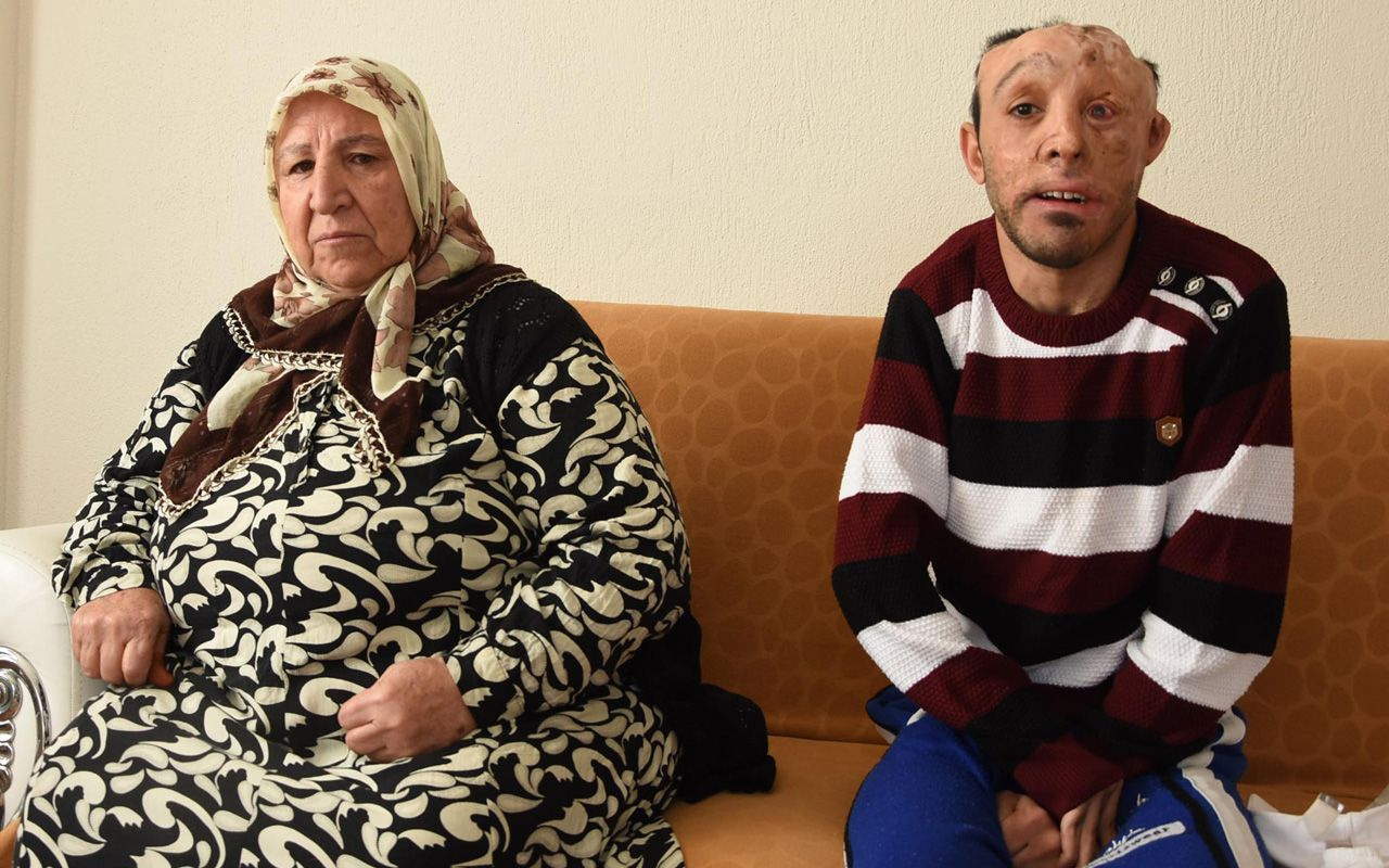 İzmir'de 6 aylık bebekken yandı belinden ve bacağından alınan dokular başına nakledildi