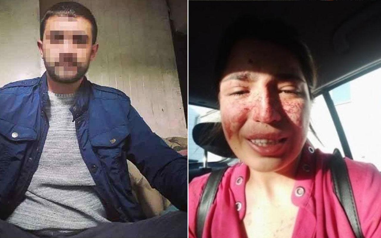 Kayseri'de boşandığı eşi dehşeti yaşattı: Ben ölmeden sesim olun