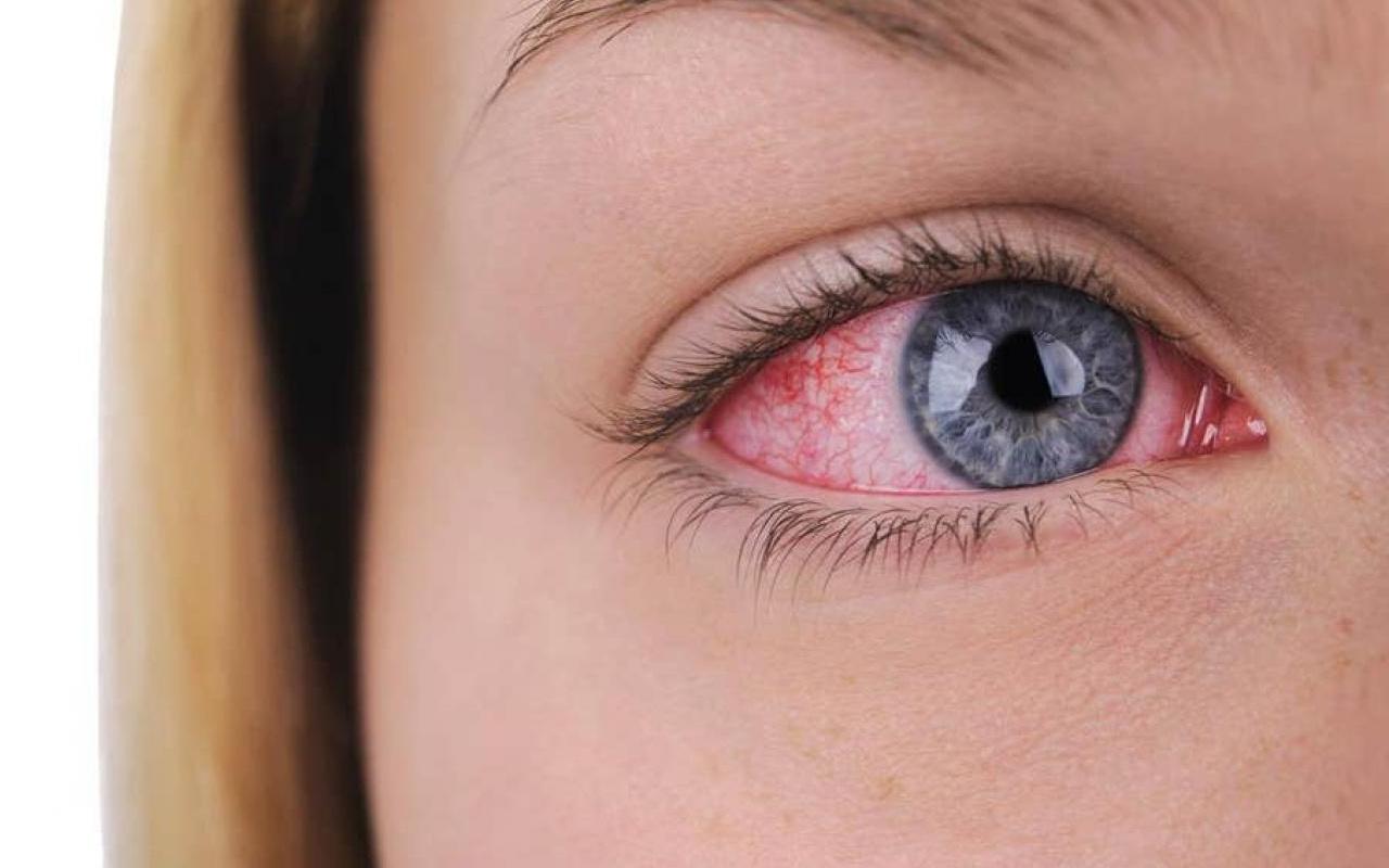 Doç. Dr. Ceyhun Arıcı: Koronavirüs sadece göz kızarıklığıyla da sinyal verebilir