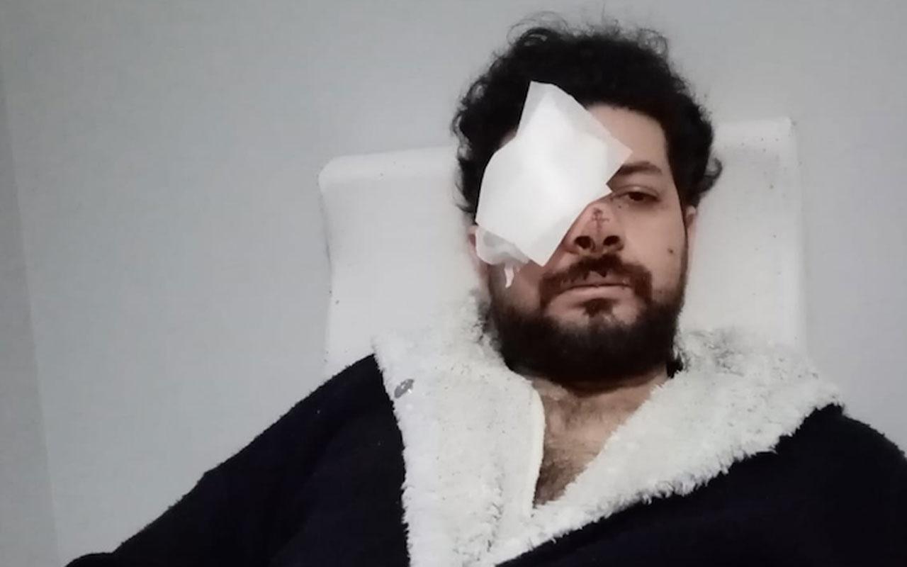 Maganda dehşeti: Genç müzisyen Şahan Dinç sağ gözünü kaybetti