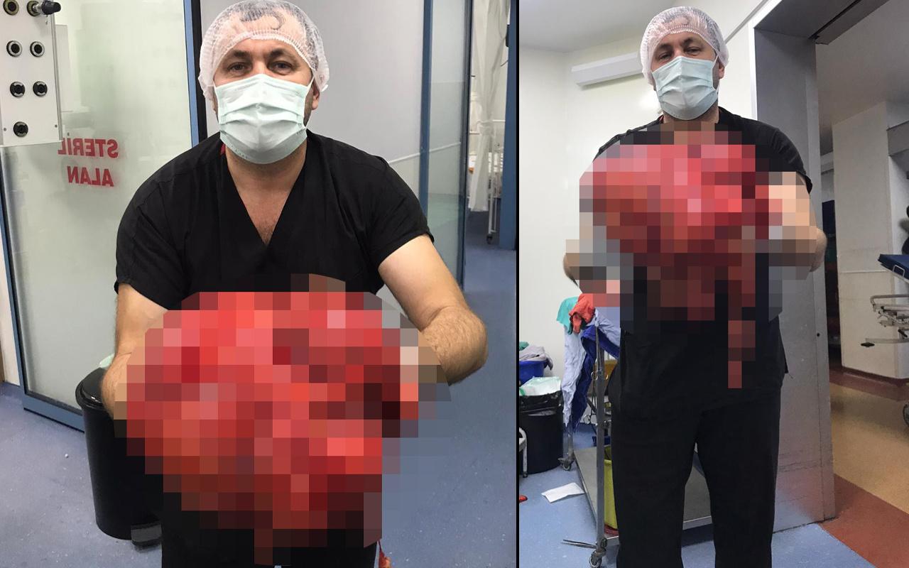 Zonguldak'ta ağrı yüzünden hastaneye gitti! Karnından çıkanlar şok etti