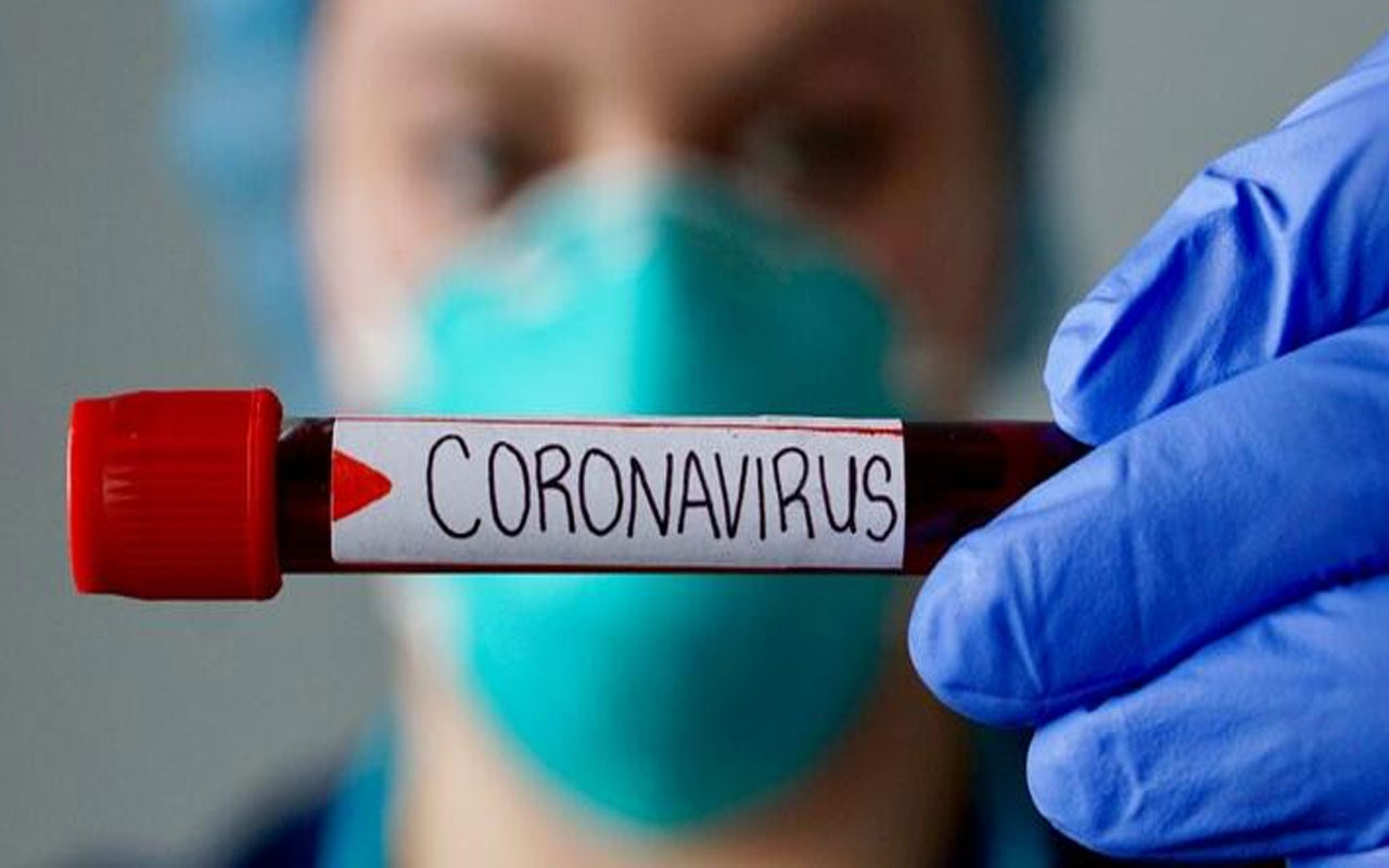 Koronavirüsün bir belirtisi daha ortaya çıktı! Aniden diş dökülmesi
