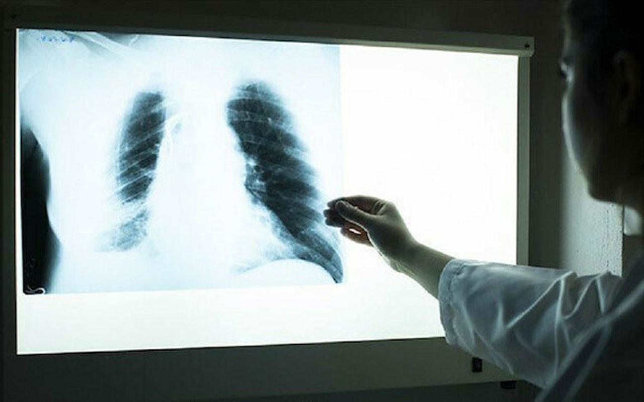 Yeni tarama yöntemiyle bulundu iyileşen Kovid-19 hastalarında 3 ay sonra ortaya çıkıyor