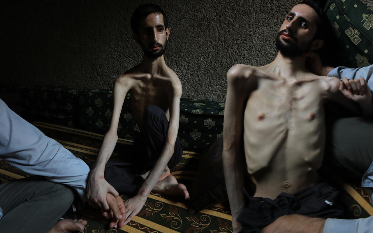 18 yaşındaki Abdullah'ın hali yürekleri burktu! 35 kiloya düştü günden güne eriyor