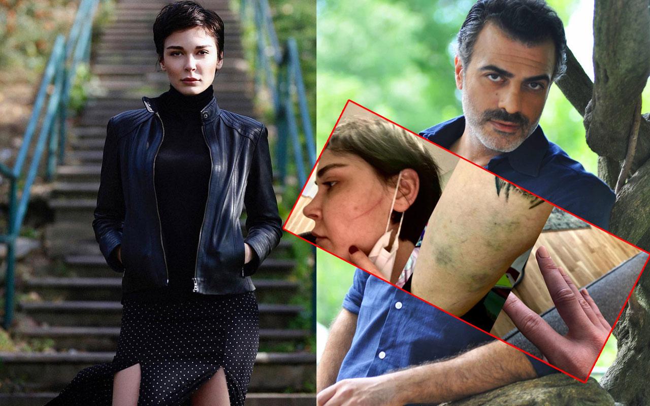 Sevcan Yaşar'ın Sermiyan Midyat tarafından darbedildiği yeni görüntüler