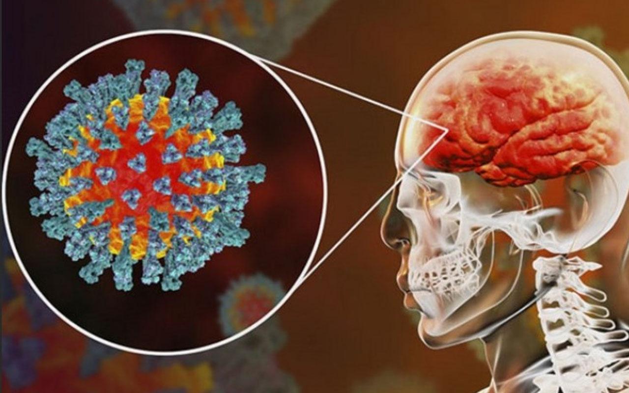 Koronavirüs beyne girebiliyor! 'Diken proteini' korkutan sonuçlar verdi
