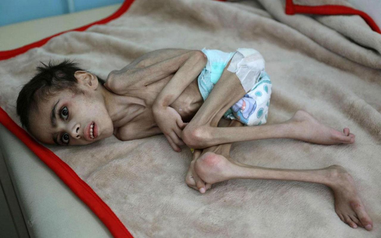 İç savaşın kucağındaki Yemen'de açlığın fotoğrafı! 7 yaşında sadece 7 kilo