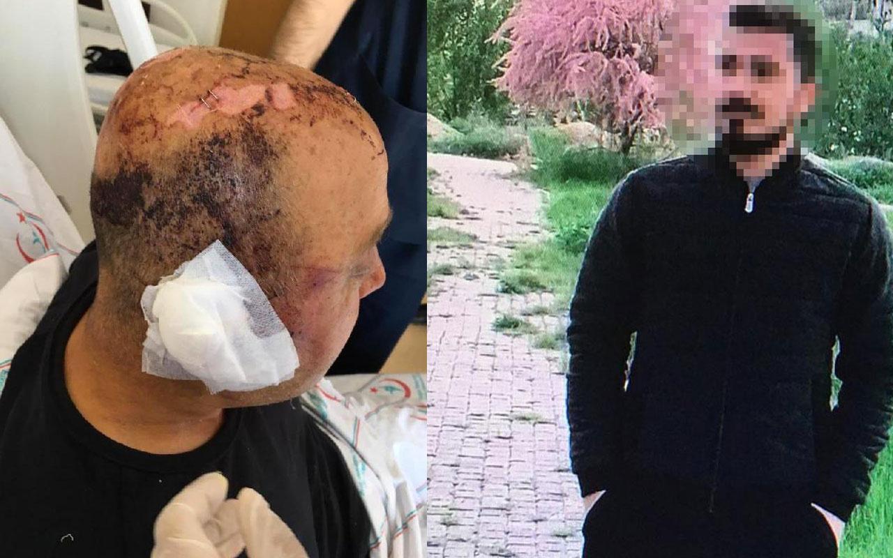Eskişehir'de polis memurunu telsizle döven saldırgan, Ağır Ceza Mahkemesi'nde yargılanacak