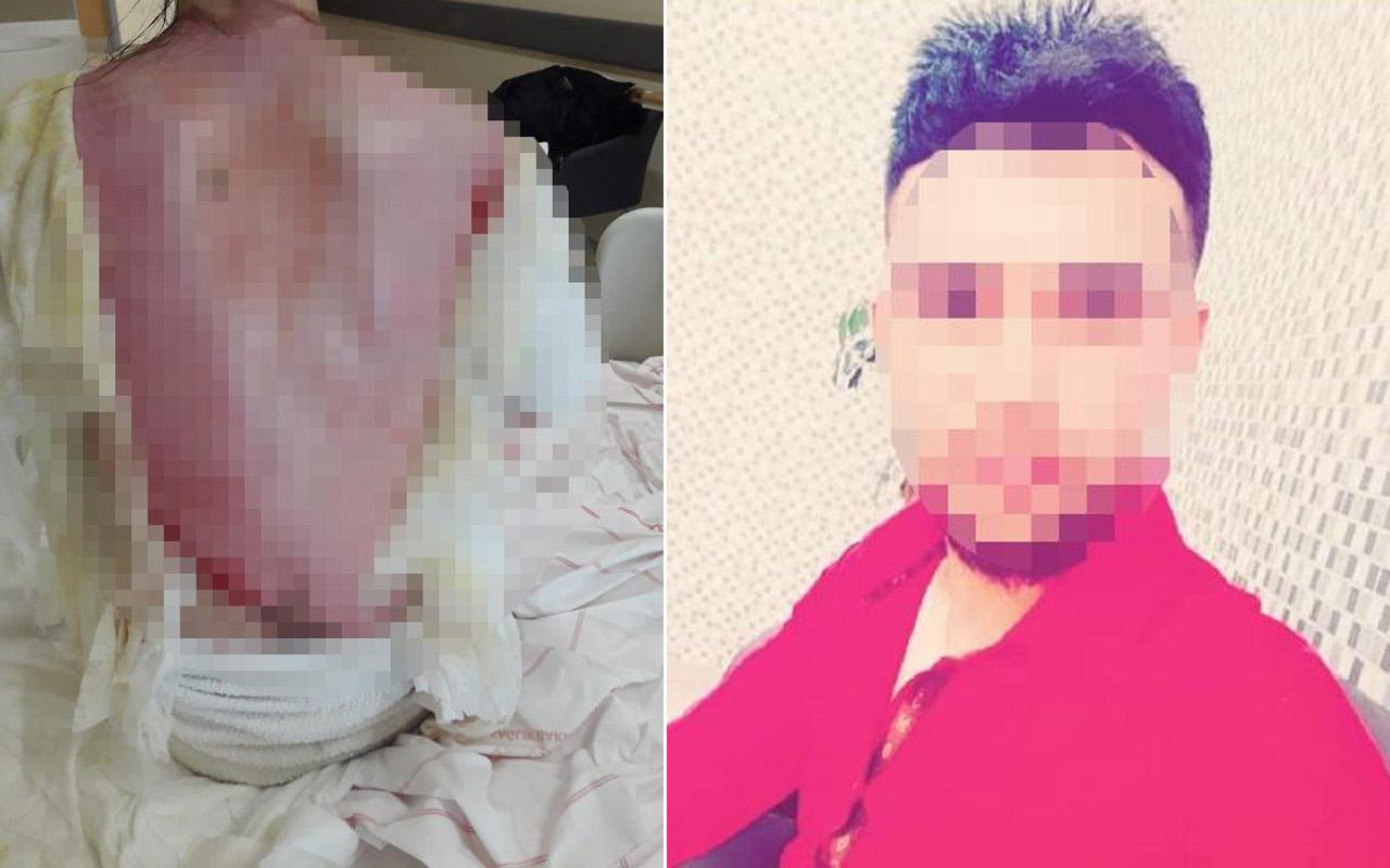 Konya'da eşinin ve 1,5 yaşındaki kızının üzerine kaynar su dökmüştü! 'Kazara oldu' dedi